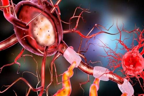célula somática-neurona